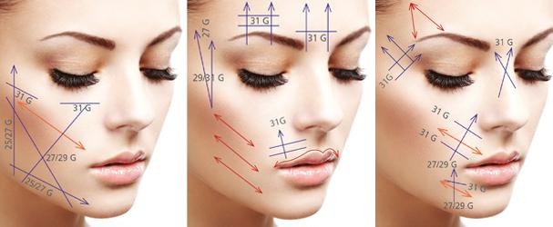 V-lifting visage